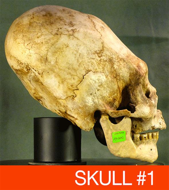 skull_conehead_elongated.jpg