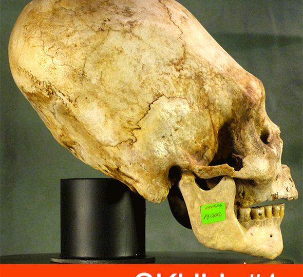 18 Elongated Skulls of Paracas Peru [VIDEO]
